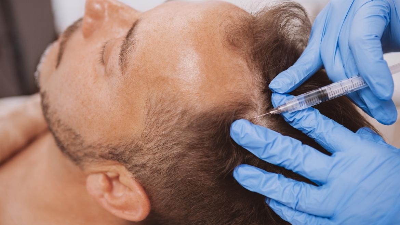 PRP – Haut- und Haarbehandlung